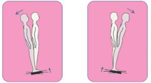 הדמיה של בדיקת שריר בעמידה